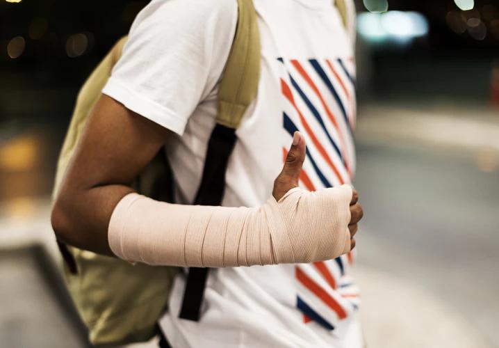 sprained-arm
